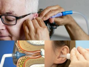 Ear Wax Removal for Tinnitus Treatment